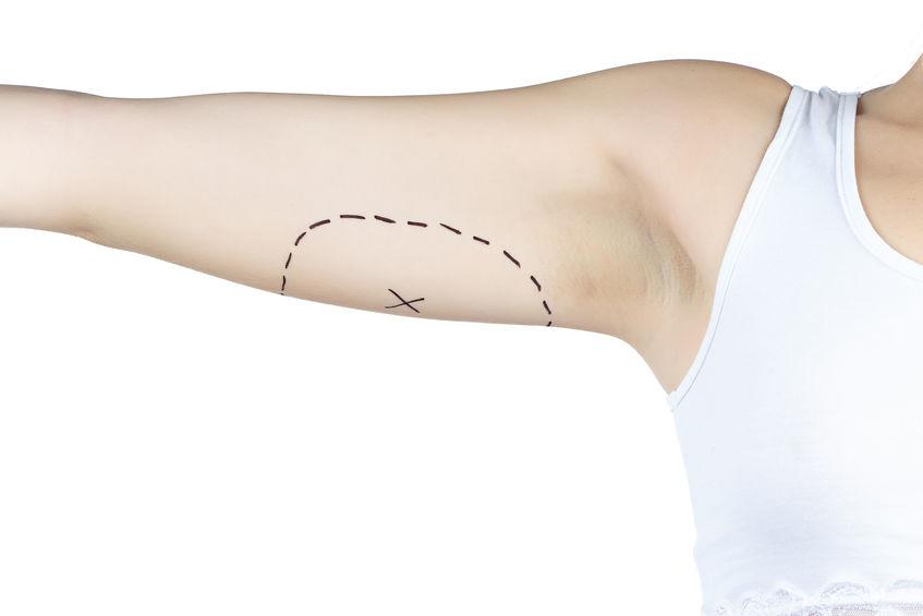 Kol Liposuction İşlemi