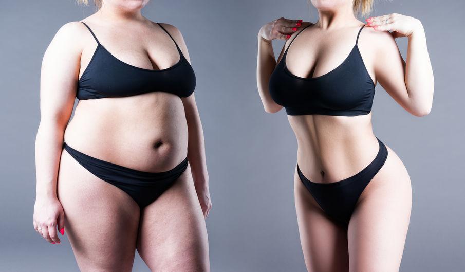 Liposuction - Yağ Alma