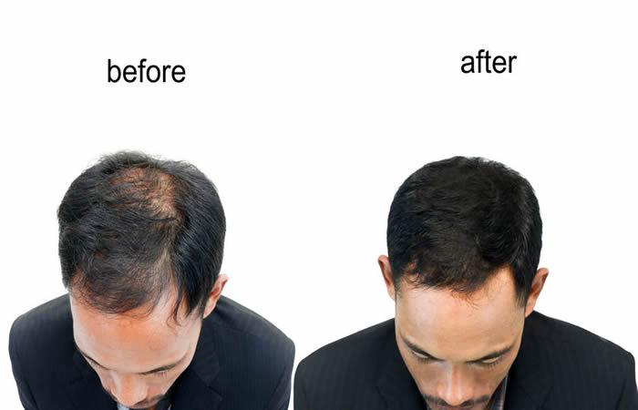 Saç Ekimi Sonrasında