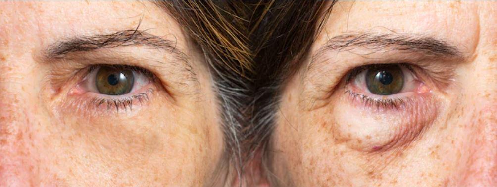 Göz Kapağı Estetiği Ağrılı Bir İşlem Mi?