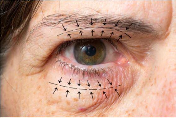 Göz Kapağı Estetik Uygulaması Öncesinde Diğer Hususlar