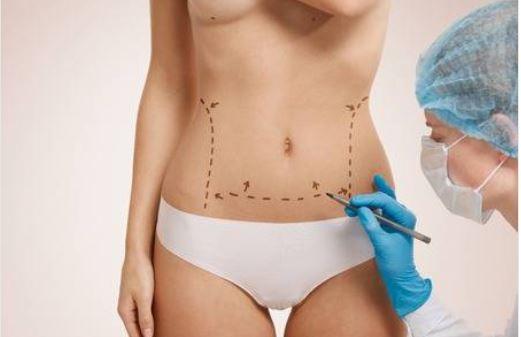 Karın Germe Ameliyatında Sıkça Sorulan Sorular Nelerdir? Ameliyat Sonrasında Şişlikler Ne Zaman Geçmektedir?